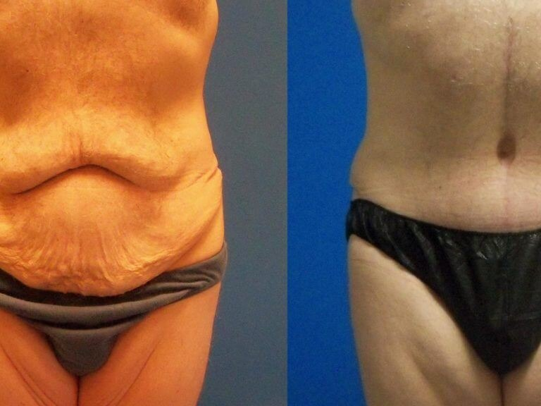 Extreme Tummy Tuck Before & After