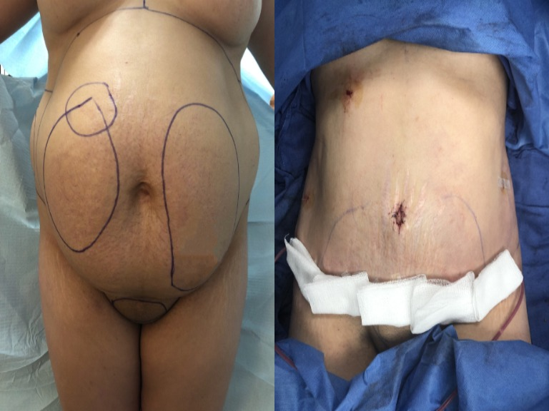 Tummy Tuck Before & Immediately After