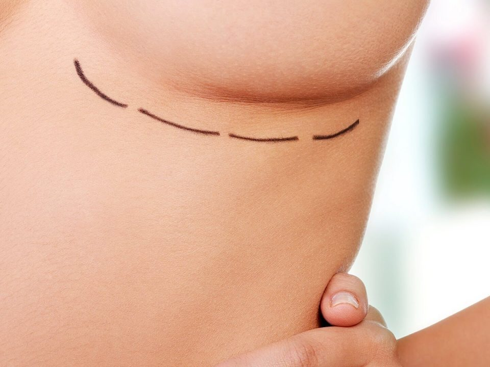 DOES AGE MATTER FOR BREAST IMPLANT SURGERY
