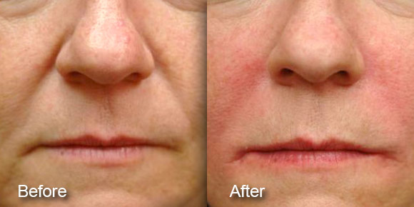 before-after-dermal-fillers-1