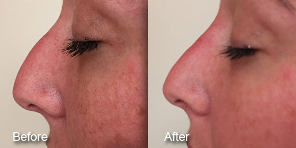 before-after-dermal-fillers-5