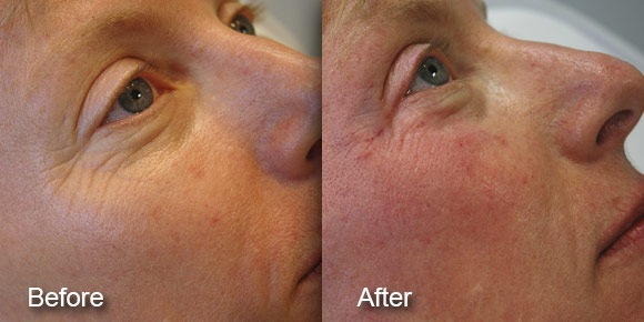 before-after-dermal-fillers-6