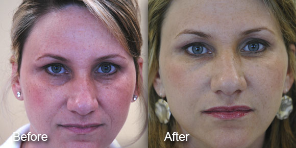 before-after-dermal-fillers-7