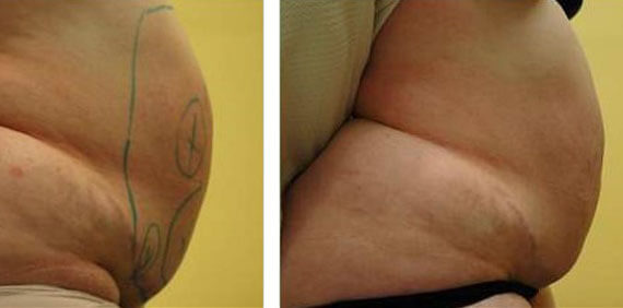 Cellulite Treatment with Mesotherapy