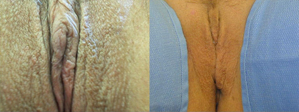 skinsational-labiaplasty-before-after-10