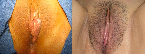 skinsational-labiaplasty-before-after-4