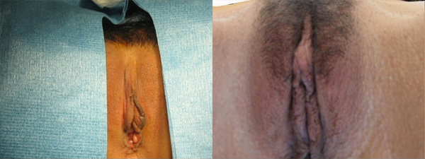 skinsational-labiaplasty-before-after-5