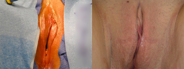 skinsational-labiaplasty-before-after-7