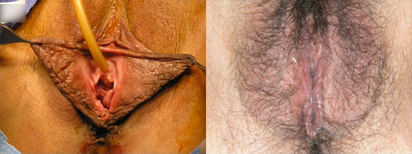 skinsational-labiaplasty-before-after-9