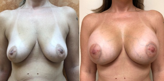 Breast Before & After
