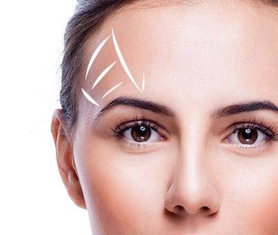skinsational-sm-Eyebrow-Lift