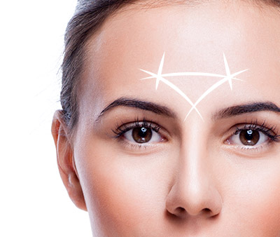 skinsational-sm-Glabella-Lift