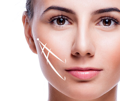 skinsational-sm-Two-Vector-Cheek-&-Mouth-Lift