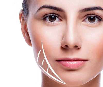 skinsational-sm-Two-Vector-Jaw-&-Neck-Lift